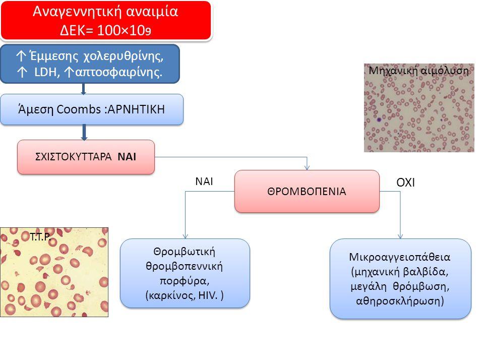 Αναγεννητική αναιμία ΔΕΚ= 100×109 ↑ Έμμεσης χολερυθρίνης,