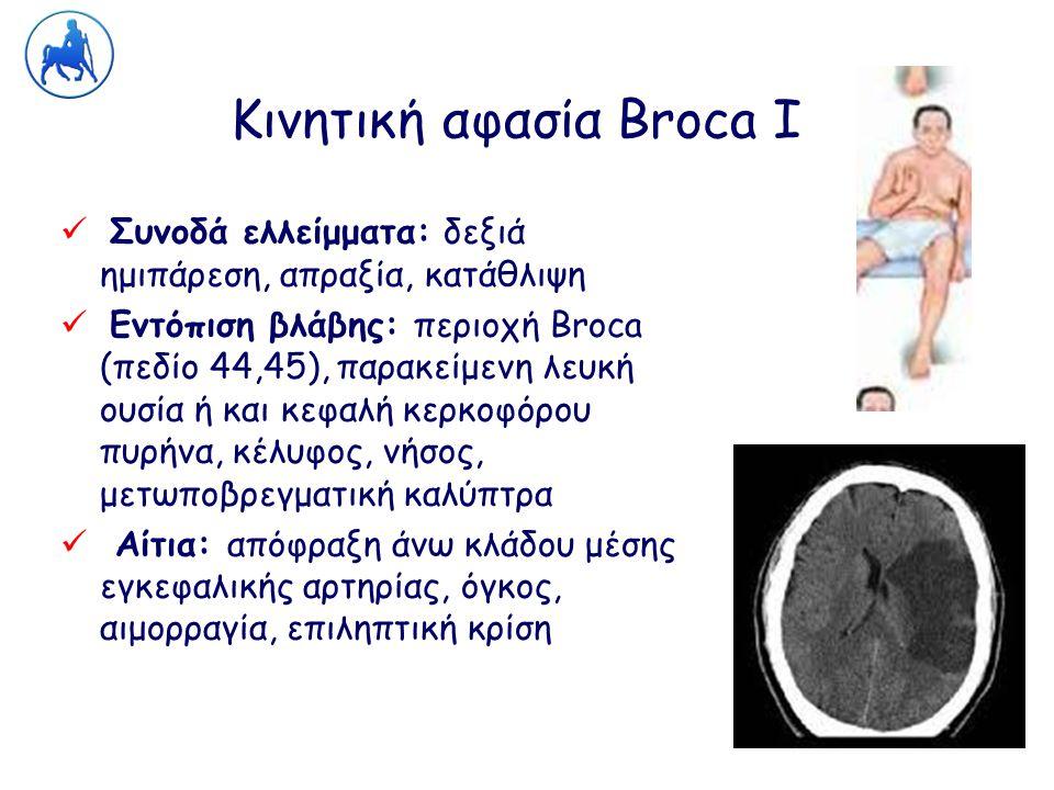 Κινητική αφασία Broca Ι