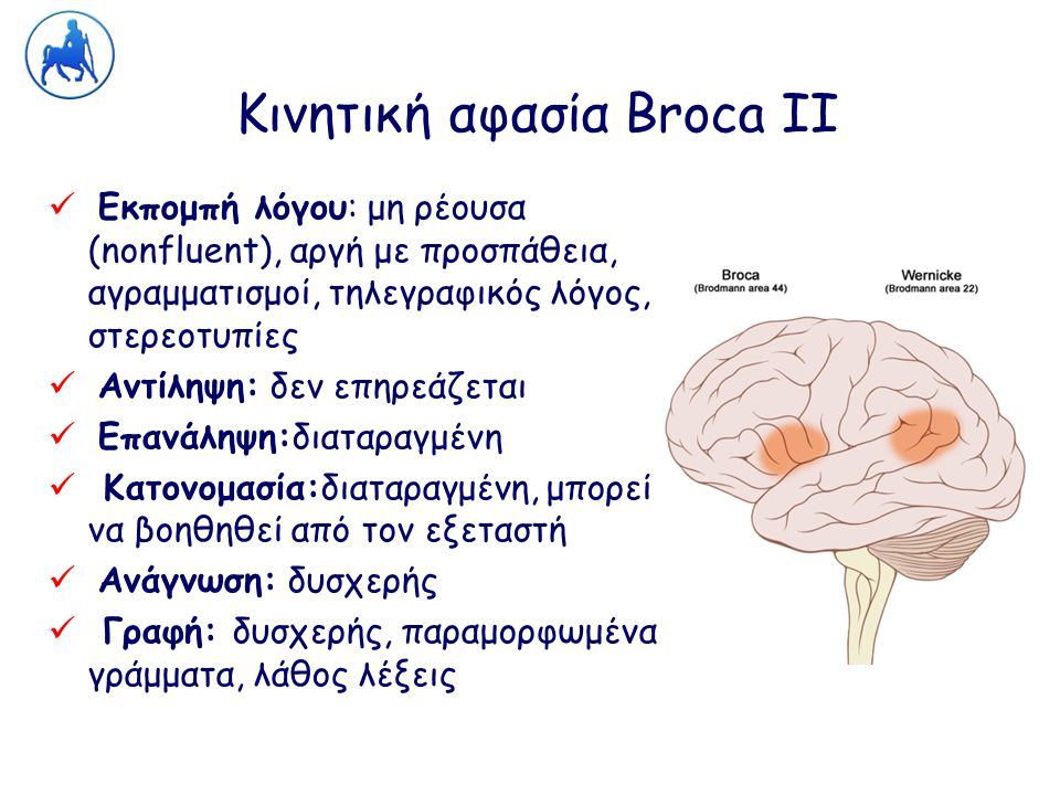 Κινητική αφασία Broca ΙΙ