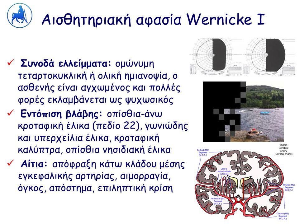 Αισθητηριακή αφασία Wernicke Ι