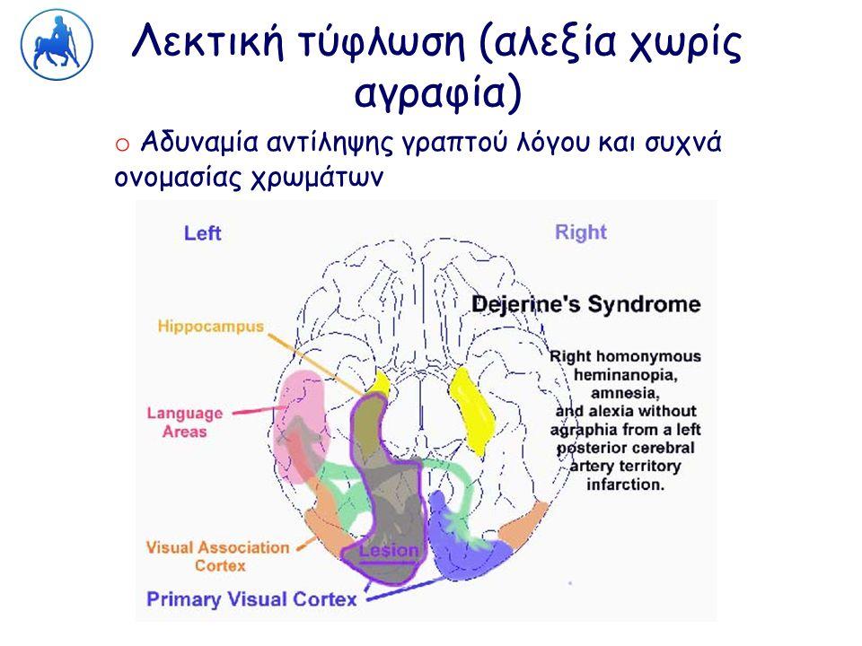 Λεκτική τύφλωση (αλεξία χωρίς αγραφία)