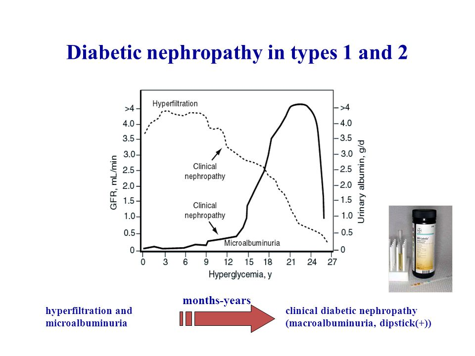 Diabetic nephropathy in types 1 and 2