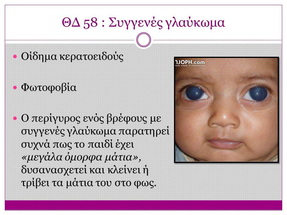 ΘΔ 58 : Συγγενές γλαύκωμα Οίδημα κερατοειδούς Φωτοφοβία