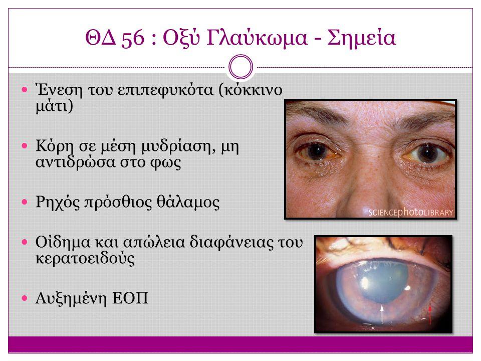 ΘΔ 56 : Οξύ Γλαύκωμα - Σημεία
