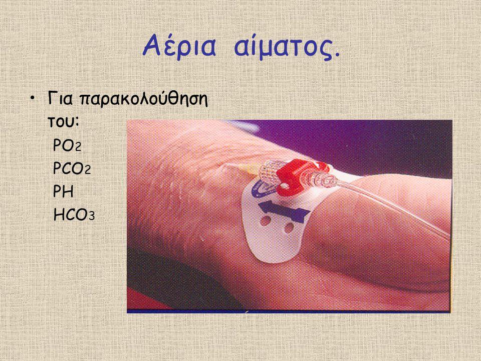 Αέρια αίματος. Για παρακολούθηση του: PO2 PCO2 PH HCO3