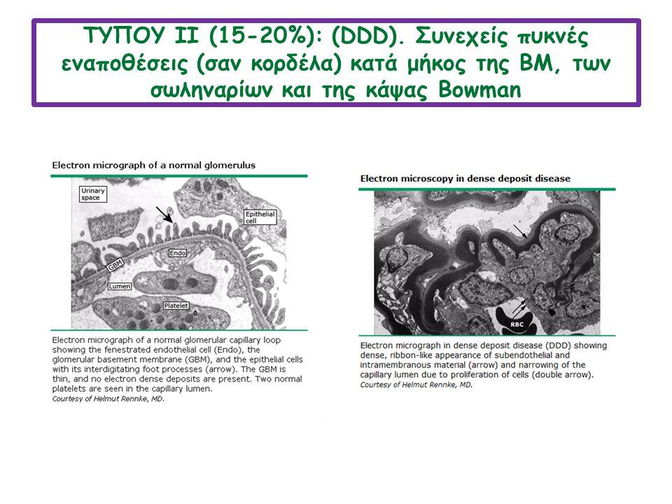 ΤΥΠΟY ΙΙ (15-20%): (DDD).