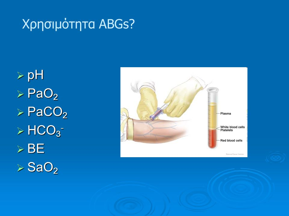 Χρησιμότητα ABGs pH PaO2 PaCO2 HCO3- BE SaO2