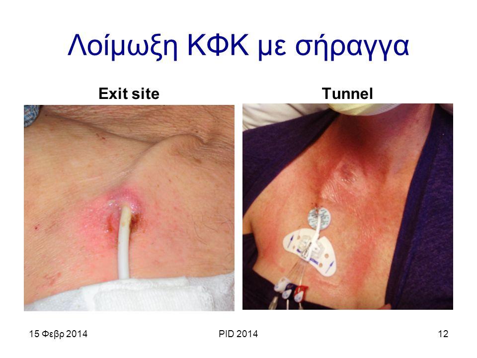 Λοίμωξη ΚΦΚ με σήραγγα Exit site Tunnel 15 Φεβρ 2014 PID 2014