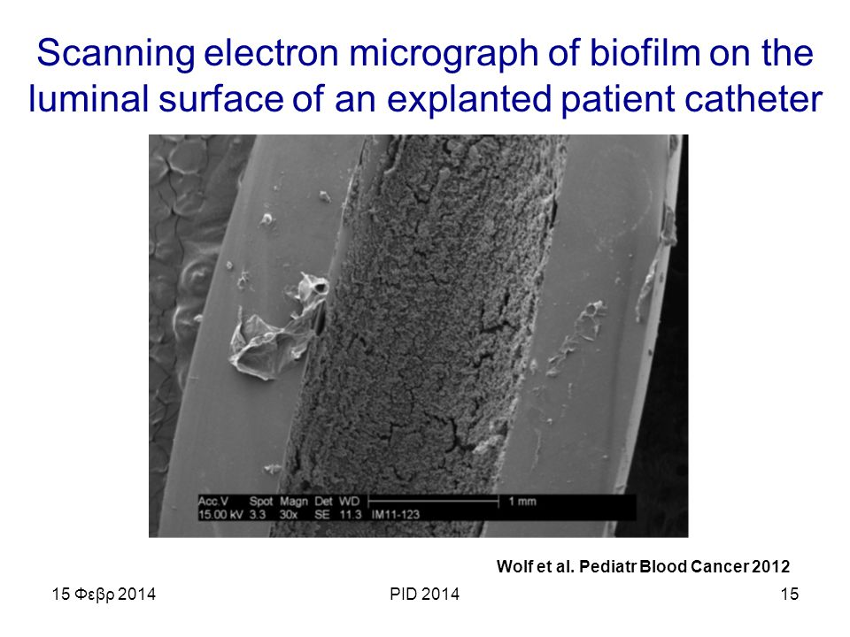 Scanning electron micrograph of biofilm on the luminal surface of an explanted patient catheter