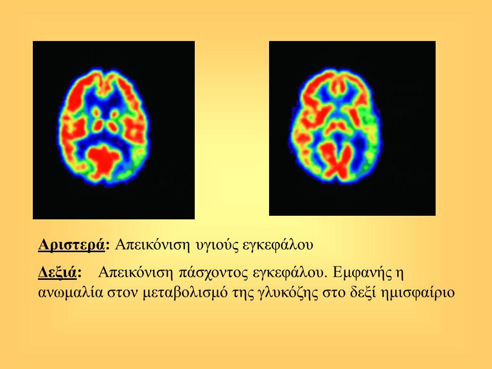 Αριστερά: Απεικόνιση υγιούς εγκεφάλου