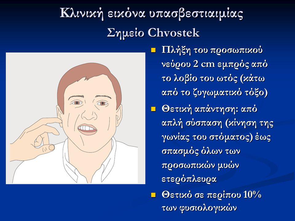 Κλινική εικόνα υπασβεστιαιμίας Σημείο Chvostek