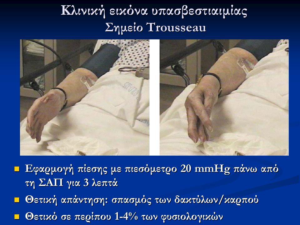 Κλινική εικόνα υπασβεστιαιμίας Σημείο Trousseau
