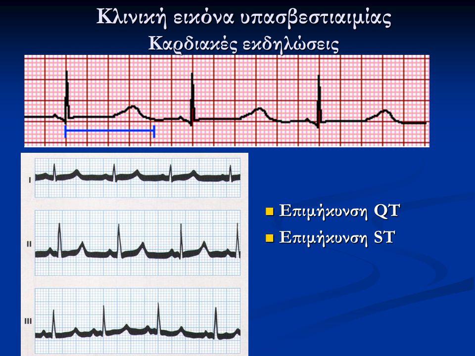 Κλινική εικόνα υπασβεστιαιμίας Καρδιακές εκδηλώσεις