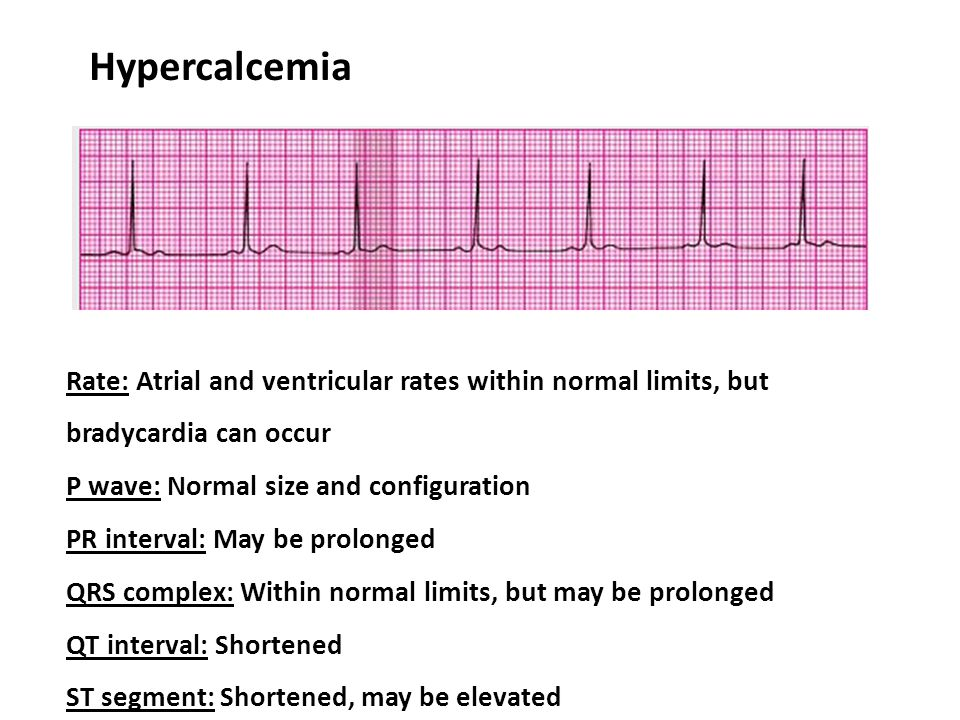 Hypercalcemia Rate: Atrial and ventricular rates within normal limits, but bradycardia can occur. P wave: Normal size and configuration.
