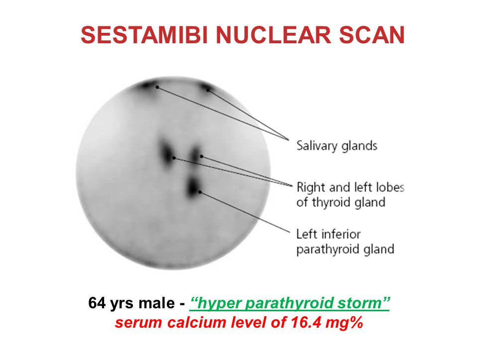 SESTAMIBI NUCLEAR SCAN