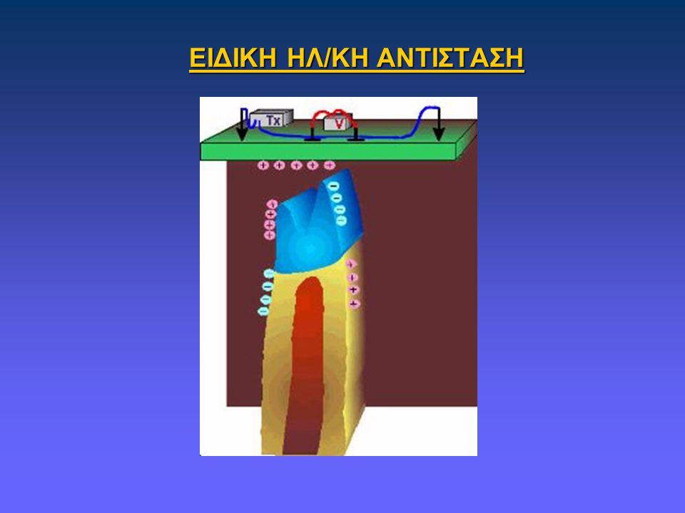 ΕΙΔΙΚΗ ΗΛ/ΚΗ ΑΝΤΙΣΤΑΣΗ