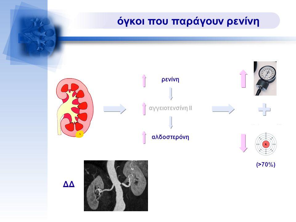 όγκοι που παράγουν ρενίνη