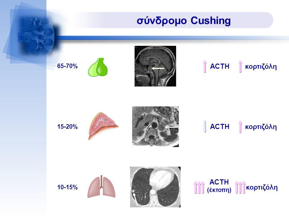 σύνδρομο Cushing ACTH κορτιζόλη ACTH κορτιζόλη ACTH κορτιζόλη 65-70%