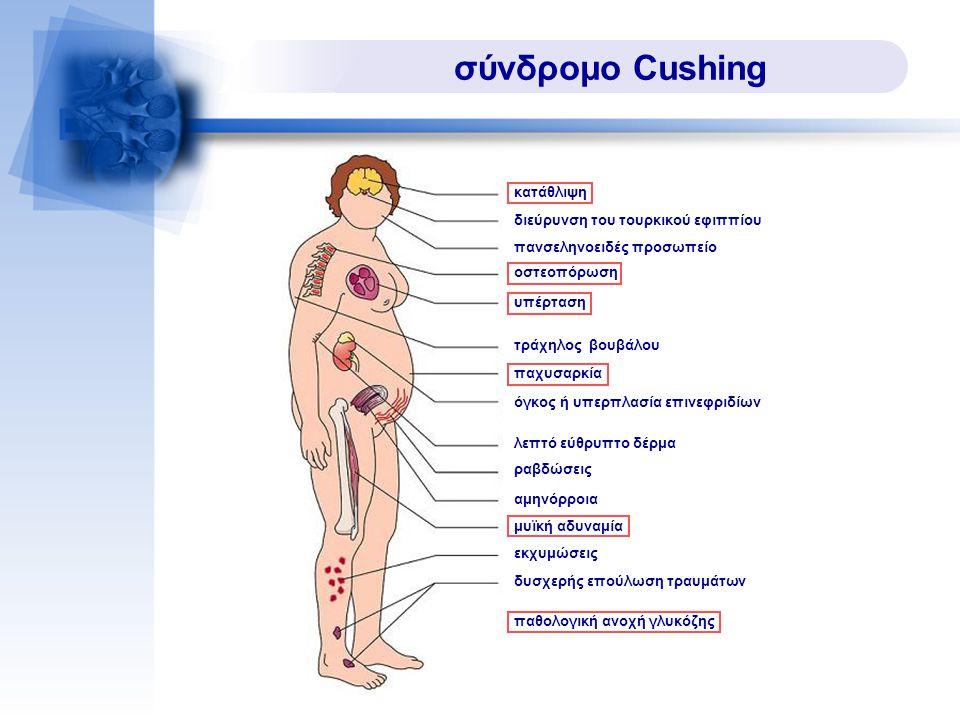 σύνδρομο Cushing 18 κατάθλιψη διεύρυνση του τουρκικού εφιππίου