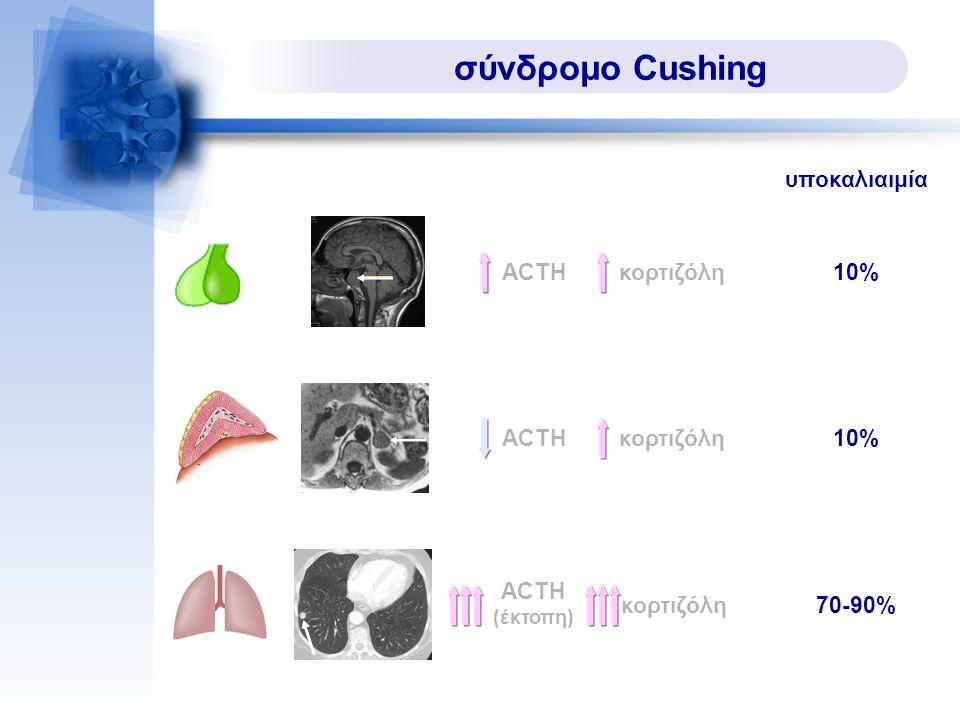 σύνδρομο Cushing υποκαλιαιμία ACTH κορτιζόλη 10% ACTH κορτιζόλη 10%