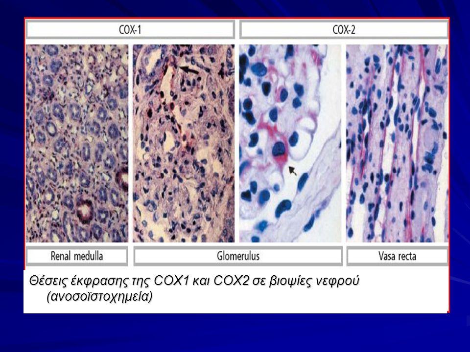Θέσεις έκφρασης της COX1 και COX2 σε βιοψίες νεφρού (ανοσοϊστοχημεία)