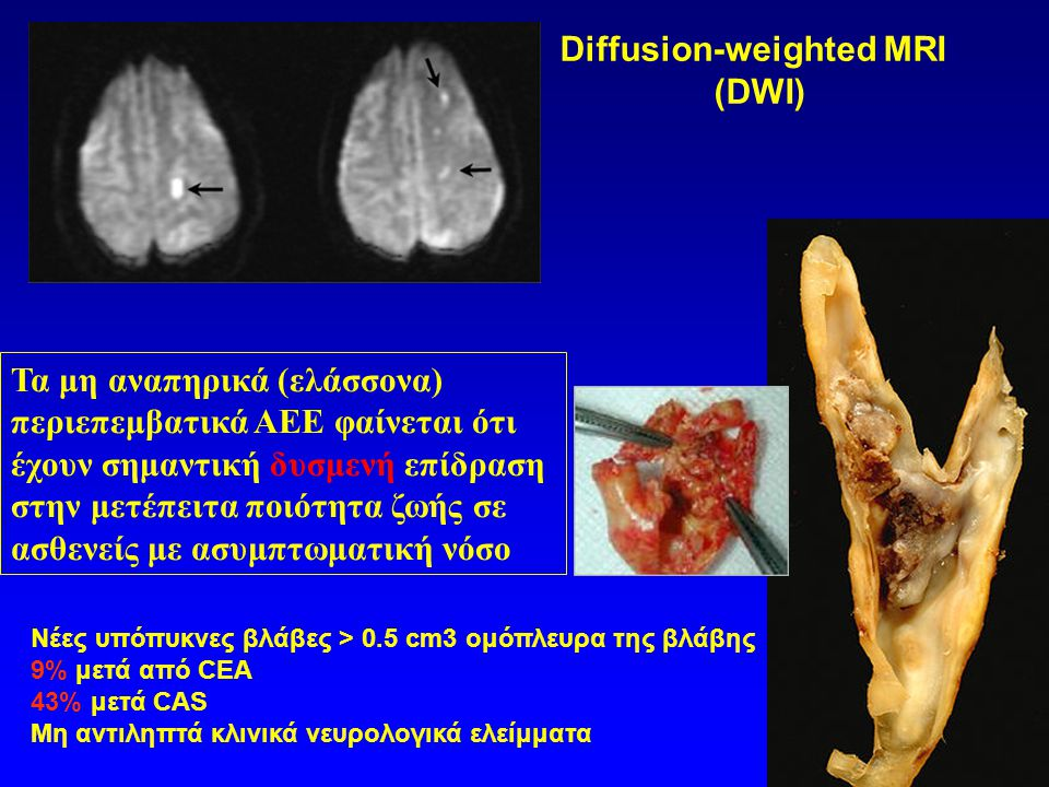 Diffusion-weighted MRI (DWI)