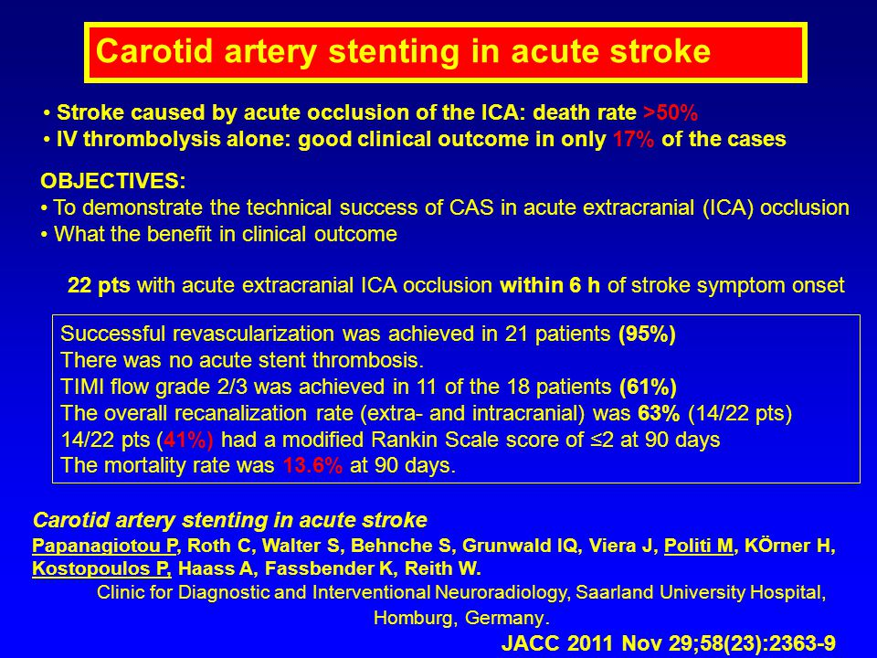 Carotid artery stenting in acute stroke