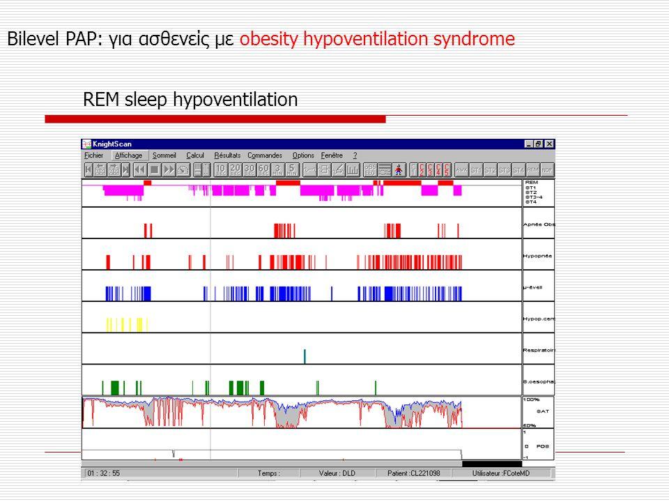 Bilevel PAP: για ασθενείς με obesity hypoventilation syndrome