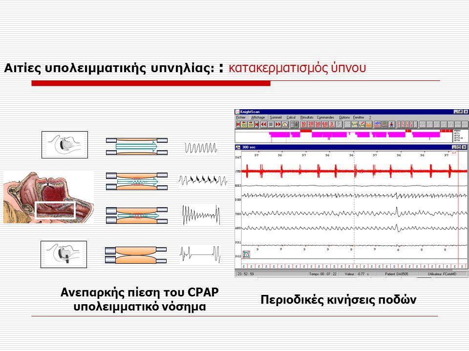 Ανεπαρκής πίεση του CPAP Περιοδικές κινήσεις ποδών