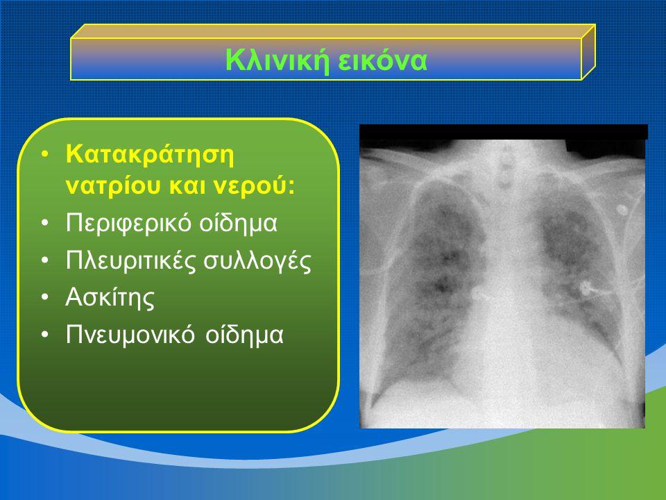 Κλινική εικόνα Κατακράτηση νατρίου και νερού: Περιφερικό οίδημα