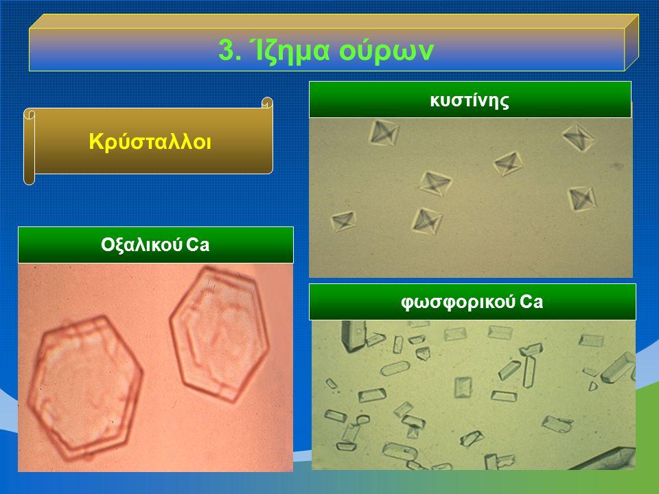 3. Ίζημα ούρων κυστίνης Κρύσταλλοι Οξαλικού Ca φωσφορικού Ca