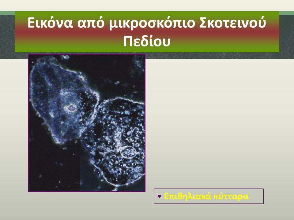 Εικόνα από μικροσκόπιο Σκοτεινού Πεδίου