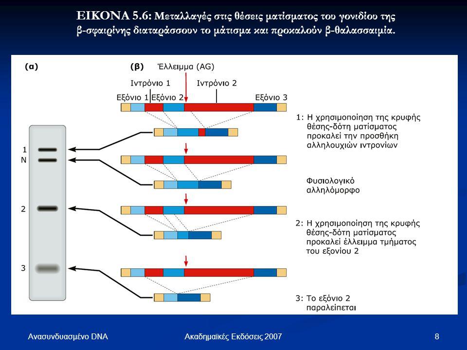ΕΙΚΟΝΑ 5.6: Μεταλλαγές στις θέσεις ματίσματος του γονιδίου της β-σφαιρίνης διαταράσσουν το μάτισμα και προκαλούν β-θαλασσαιμία.