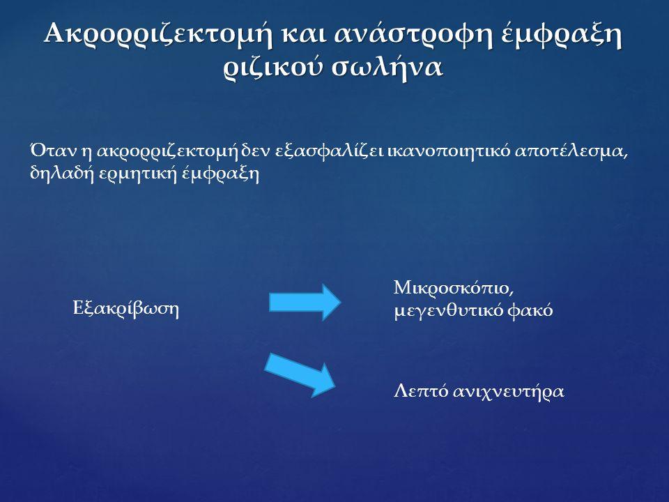 Ακρορριζεκτομή και ανάστροφη έμφραξη ριζικού σωλήνα