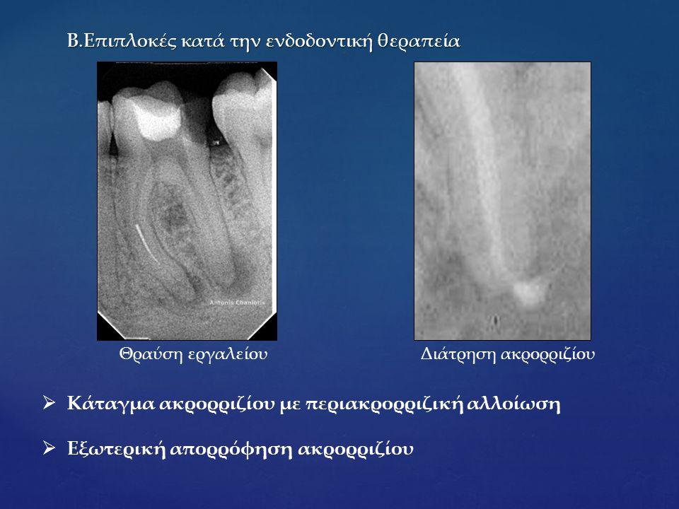 Β.Επιπλοκές κατά την ενδοδοντική θεραπεία