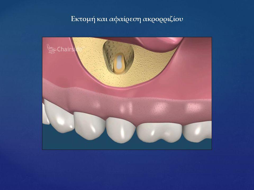 Εκτομή και αφαίρεση ακρορριζίου
