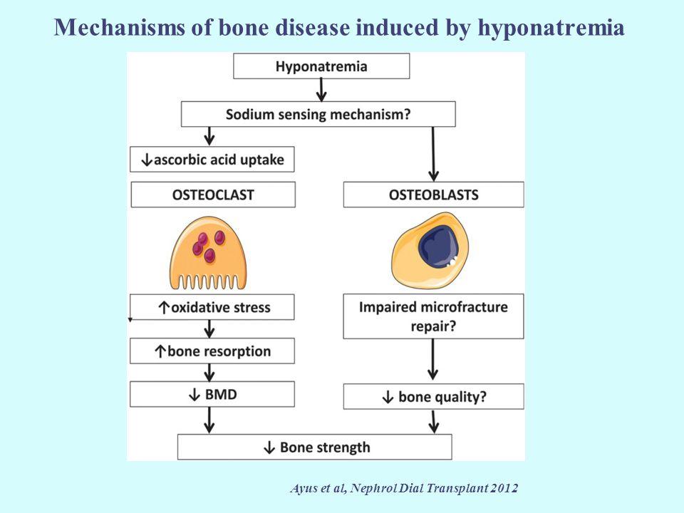 Mechanisms of bone disease induced by hyponatremia