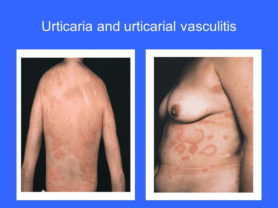 Urticaria and urticarial vasculitis