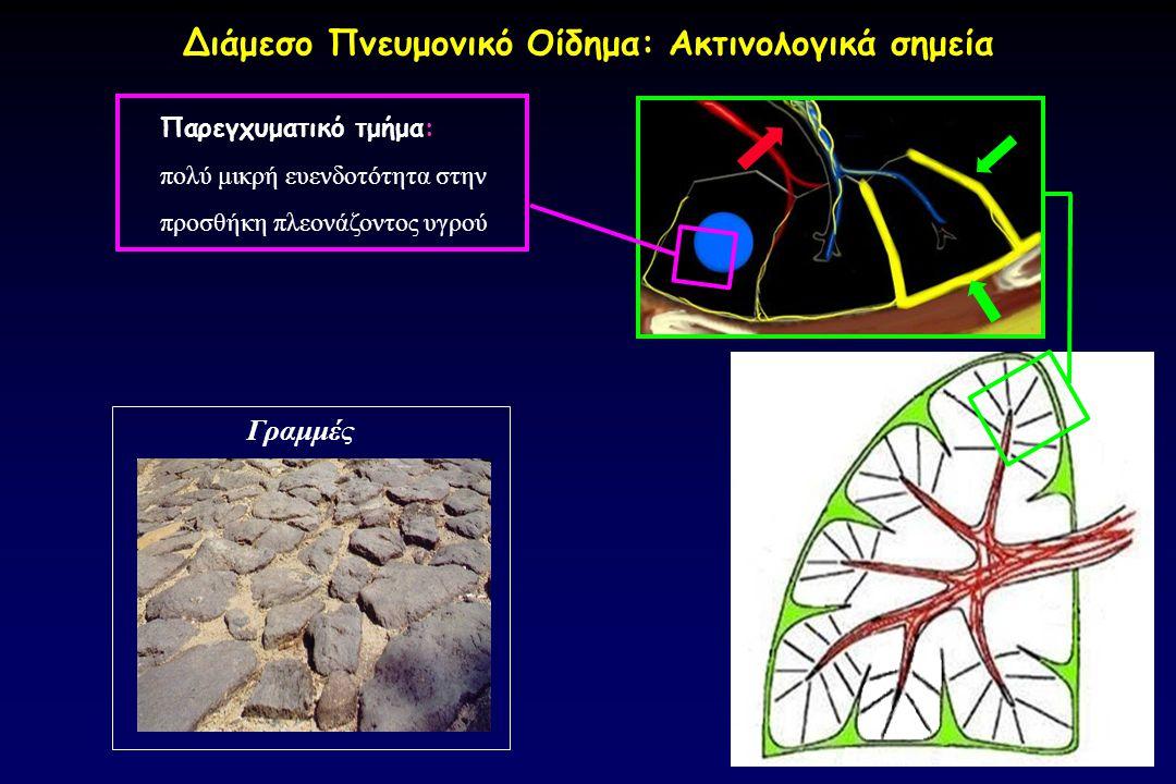 Διάμεσο Πνευμονικό Οίδημα: Ακτινολογικά σημεία