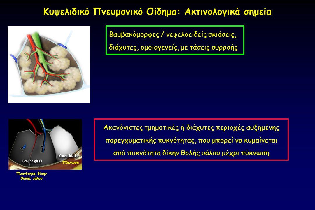 Κυψελιδικό Πνευμονικό Οίδημα: Ακτινολογικά σημεία
