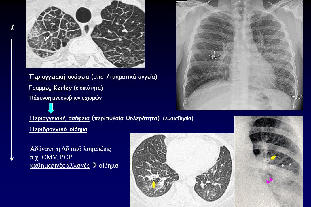 t Αδύνατη η Δδ από λοιμώξεις π.χ. CMV, PCP