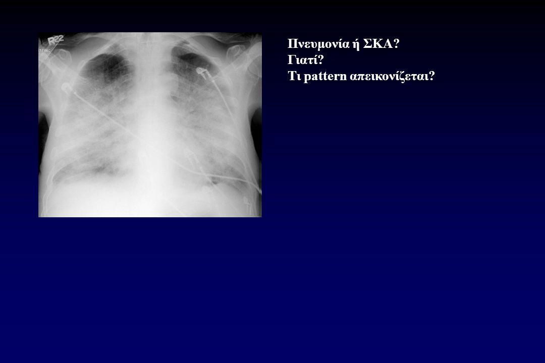 Πνευμονία ή ΣΚΑ Γιατί Τι pattern απεικονίζεται