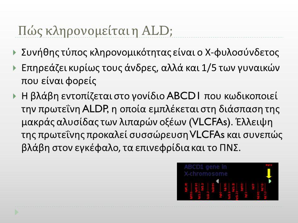 Πώς κληρονομείται η ALD;