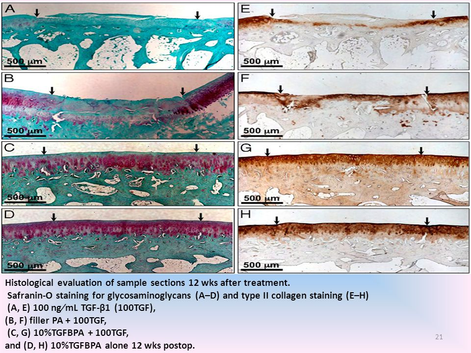 Histological evaluation of sample sections 12 wks after treatment.
