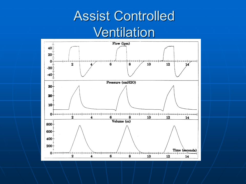 Assist Controlled Ventilation