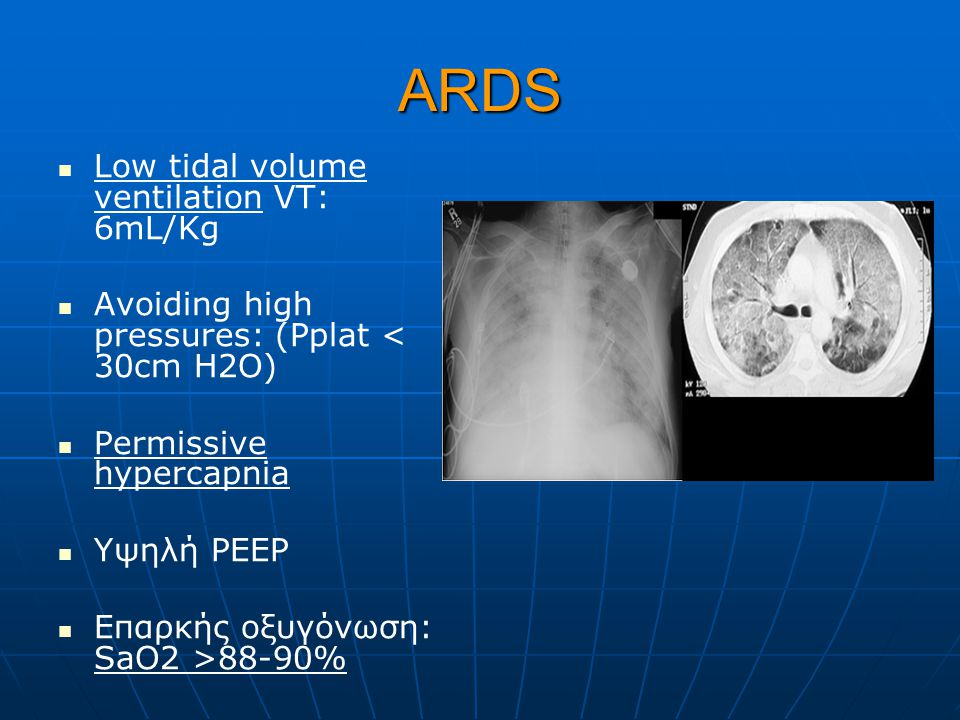 ΑRDS Low tidal volume ventilation VT: 6mL/Kg
