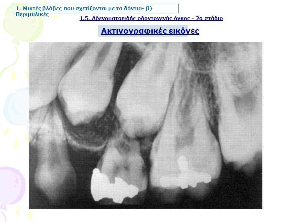 1.5. Αδενοματοειδής οδοντογενής όγκος - 2ο στάδιο