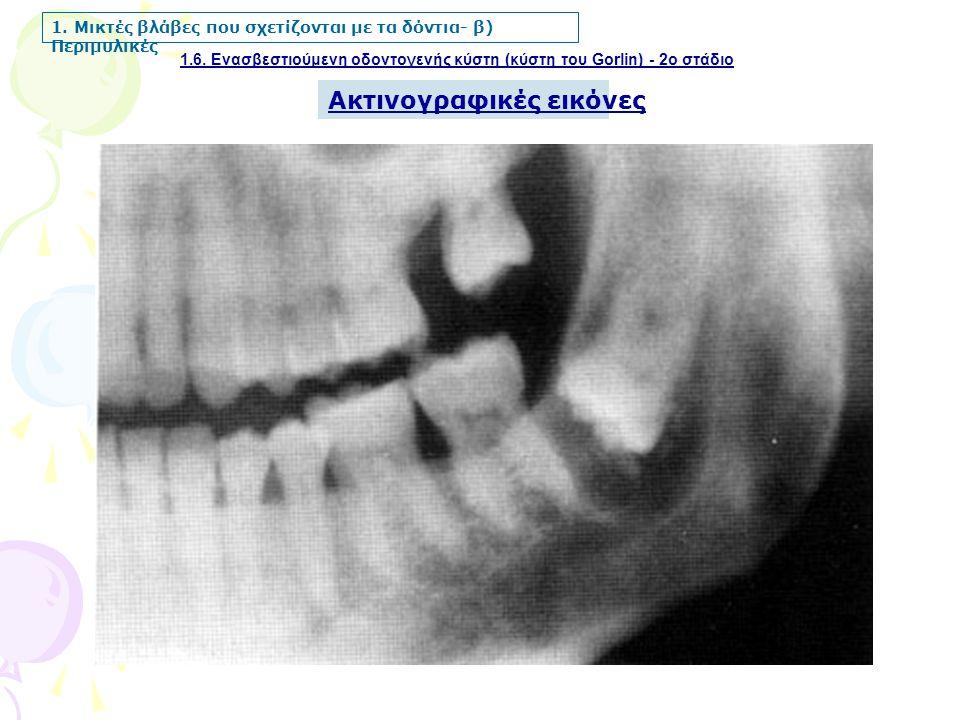 1.6. Ενασβεστιούμενη οδοντογενής κύστη (κύστη του Gorlin) - 2ο στάδιο