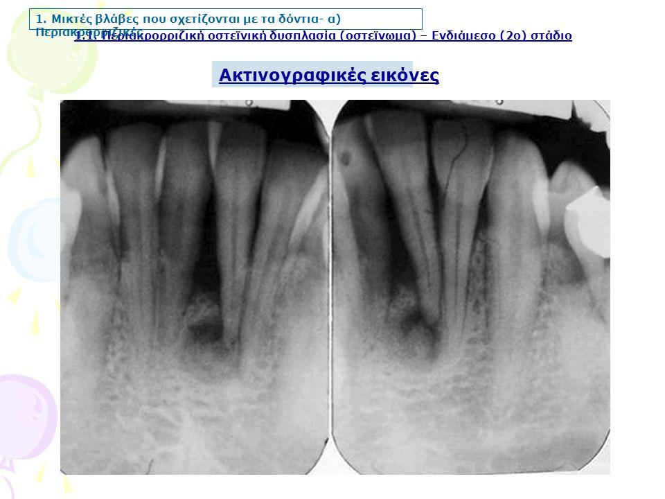 Ακτινογραφικές εικόνες