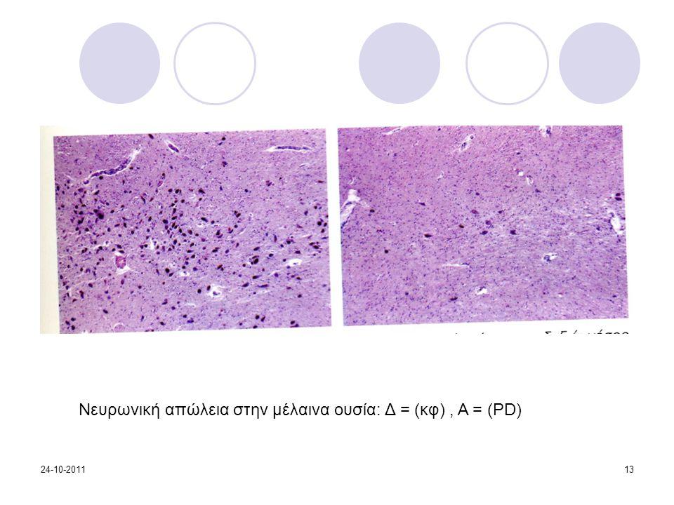 Νευρωνική απώλεια στην μέλαινα ουσία: Δ = (κφ) , Α = (PD)